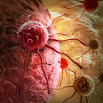 がんの早期発見に有効なPET検診とは?