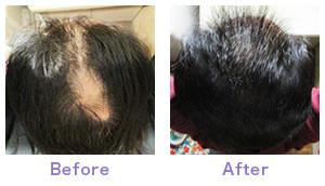 温泉藻類®RG92エキス配合ローションの発毛・育毛効果