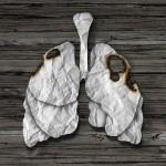肺がんを高感度で検出する腫瘍マーカー「CYFRA(シフラ)」