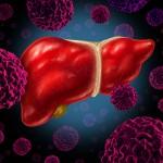 肝臓がんの腫瘍マーカー「PIVKA-Ⅱ」