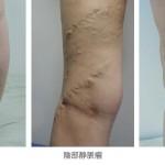 Vol.5 下肢静脈瘤になってしまったら? 初期症状と最新治療法、治療後のケア