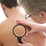 皮膚がんの検査方法と治療法
