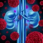 腎細胞がんの検査方法と治療法