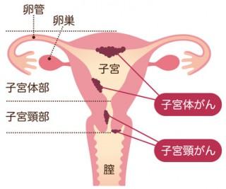 「子宮体癌」の画像検索結果