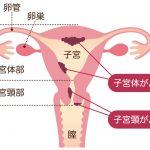「ヒトパピローマウイルス」への感染が原因の子宮頸がんを調べる検査とは?【感染が原因のがんシリーズVol.3】
