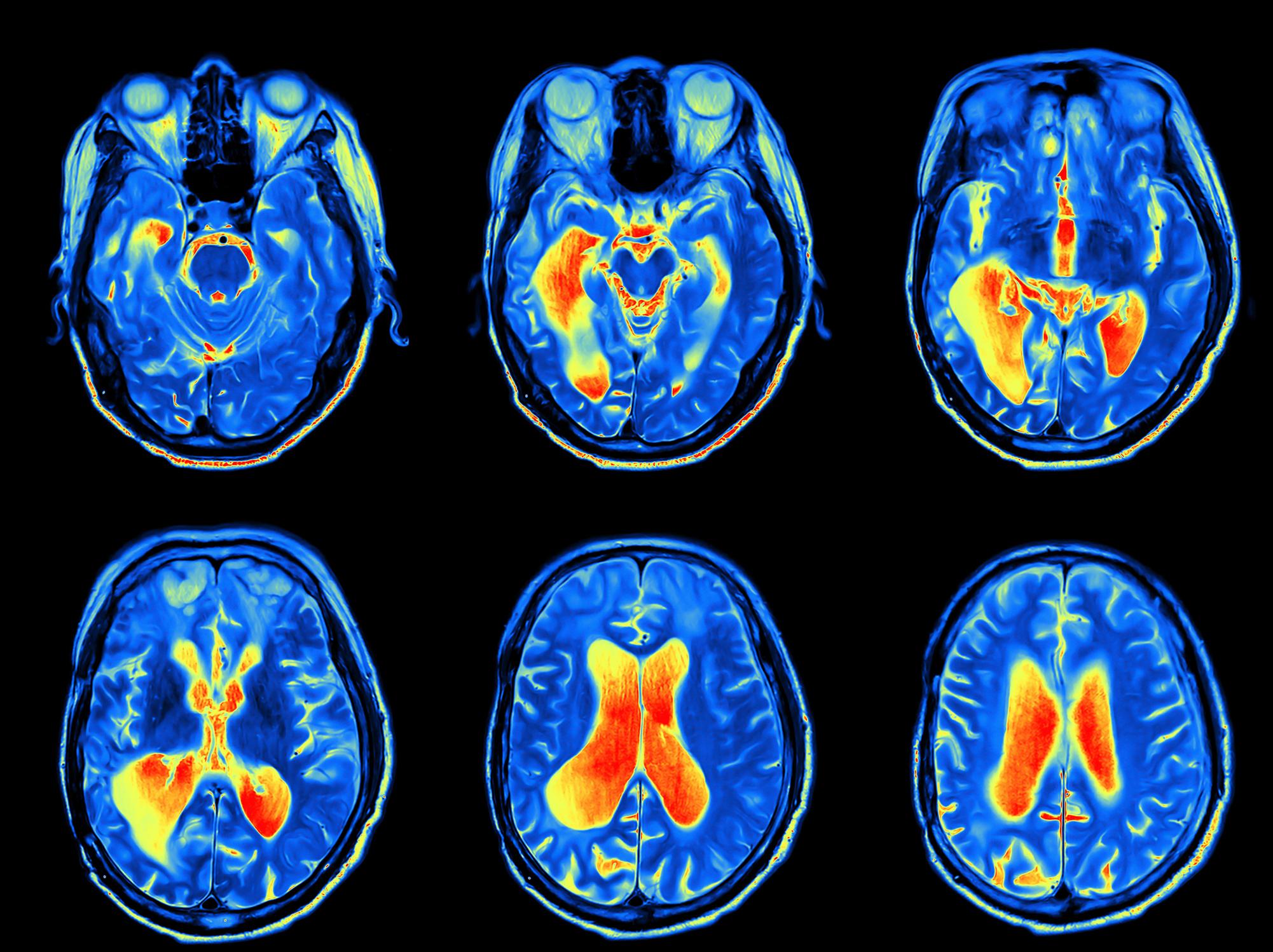 大脳 白質