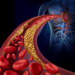 コレステロール値が高い人は要注意! 年間8万人が罹患する動脈硬化のリスクと対策とは?