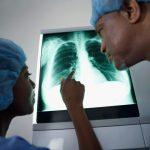 40歳以上の喫煙者は必読! がん死因第1位「肺がん」のリスクと治療費への備え