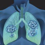 万が一、肺がんにかかったとき、何日入院するの? 治療費はおいくら?